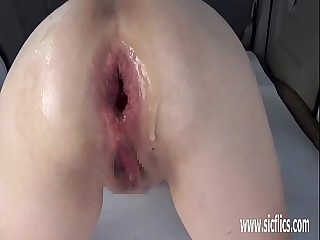 Extreme anal fisting plus ill-fated case apple insertions
